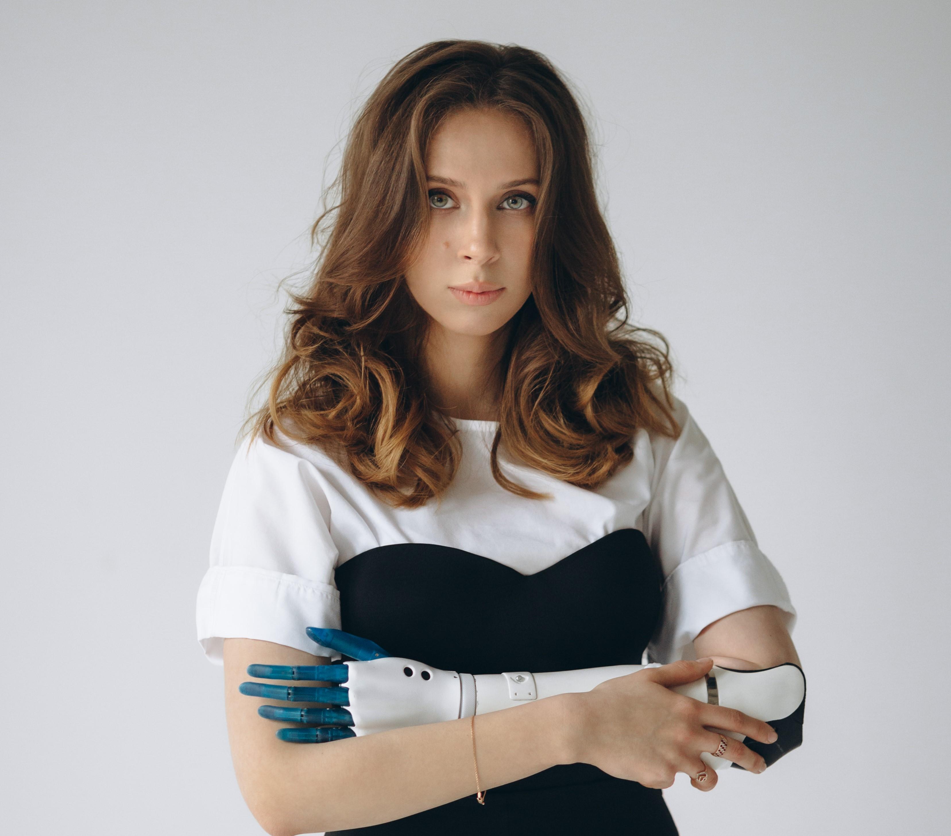 Первая версия роботизированной руки. Фото: Esper Bionics