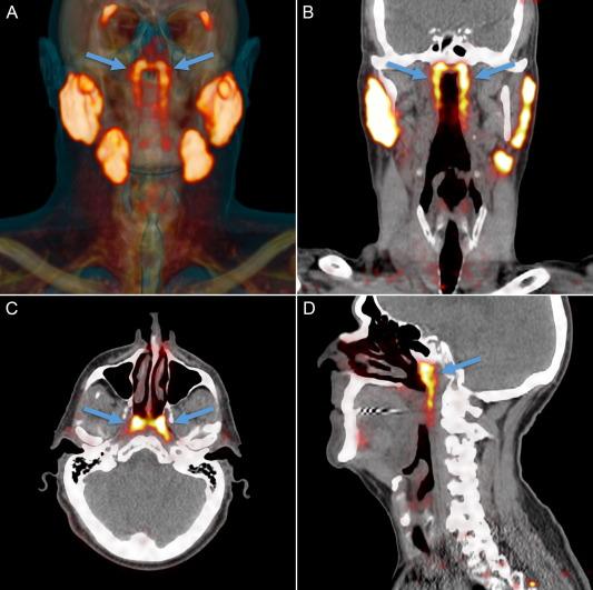 Ученые обнаружили у человека ранее неизвестный орган – новые слюнные железы: фото, видео