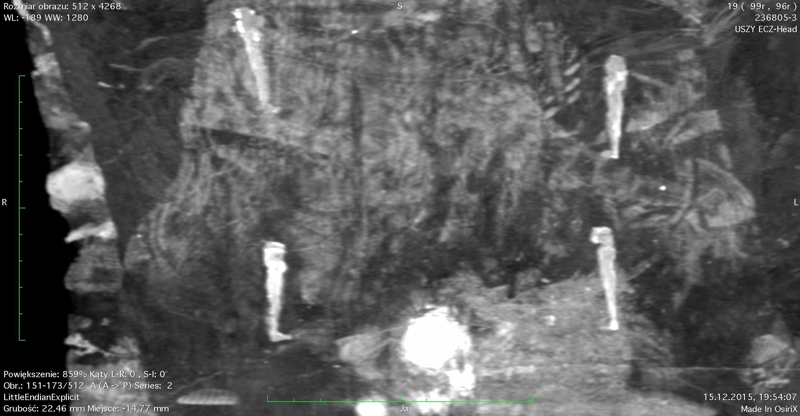 #новости   В Польше обнаружили первую в мире египетскую мумию беременной женщины: фото - новости Украины, Мир