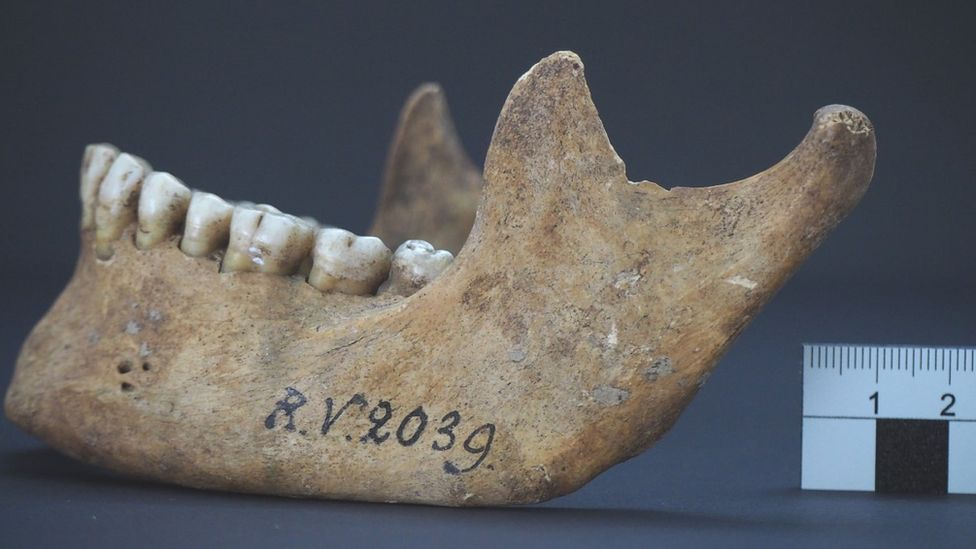 За 4000 лет до Черной смерти. В Латвии нашли останки самой древней жертвы чумы