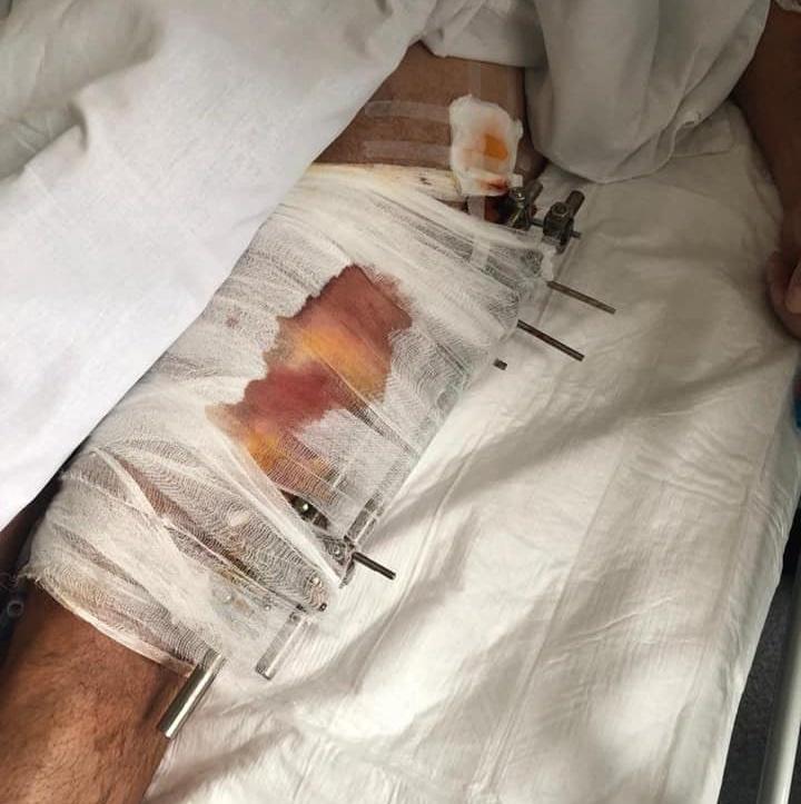 Фото водителя в больнице (источник – Facebook Давида Арахамии)