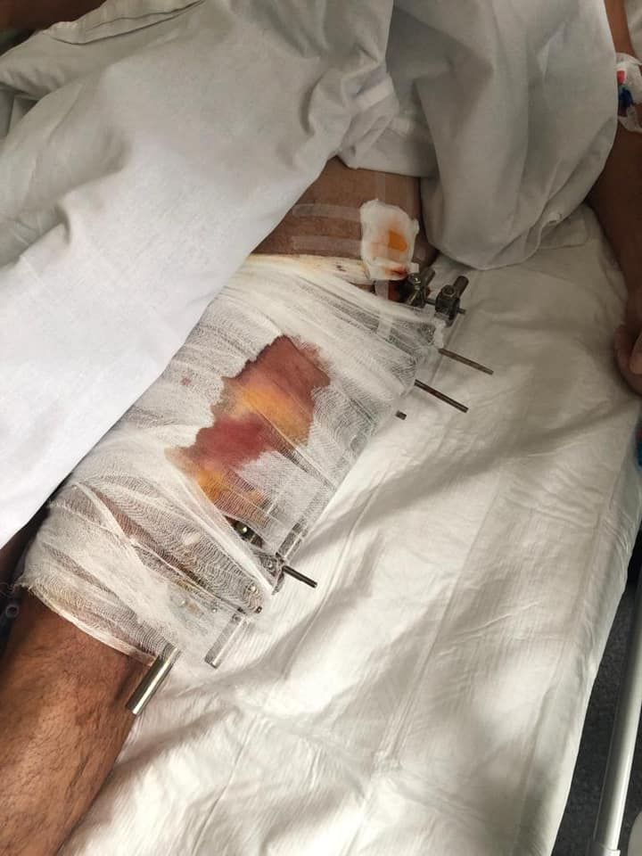 """""""Стреляли из Калашникова"""". Арахамия показал пулю из ноги раненого водителя Шефира: фото"""