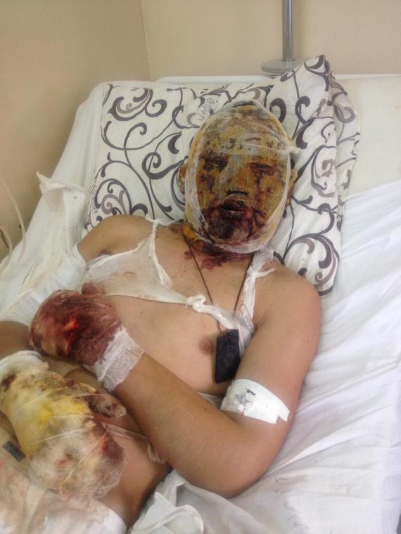 Обгоревший в Донбассе танкист ВС РФ рассказал о боях в Дебальцево