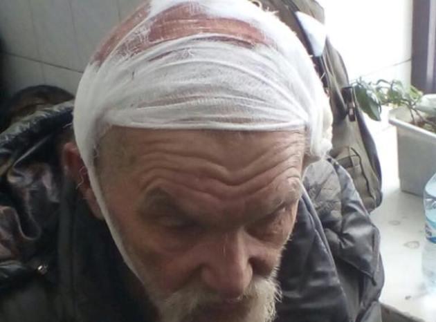 Разгон палаточного городка у Рады: госпитализированы 11 человек