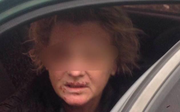 За медперсонала преступники добивались выкуп в $100 000— Похищение под Киевом