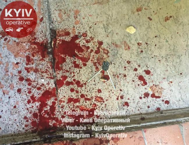 В киевском ЖЭКе в мужчину стреляли и отобрали 200 тыс грн: фото