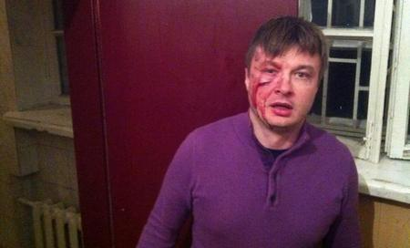 В центре Киева избили народного депутата от Свободы