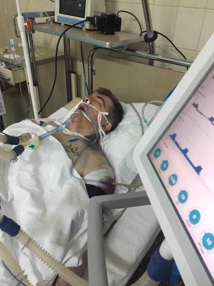 Покушение на Осмаева: опубликовано фото киллера из больницы