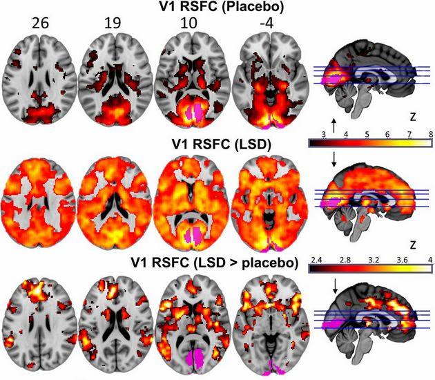 Нейрофизиологи исследовали мозг человека под ЛСД: снимок
