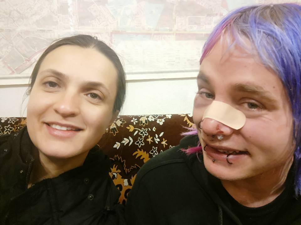 Добро пожаловать: в центре Киева избили юного туриста из Британии