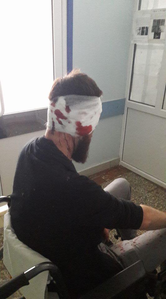 В Харькове днем у подъезда дома избили депутата облсовета: фото